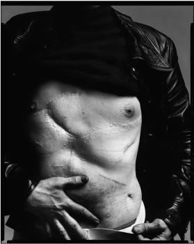 Warhol cicatriz